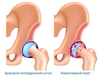 Deformatsiya tazobedrennogo sustava iz-za artrita