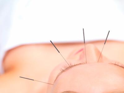 Akupunktura litsa
