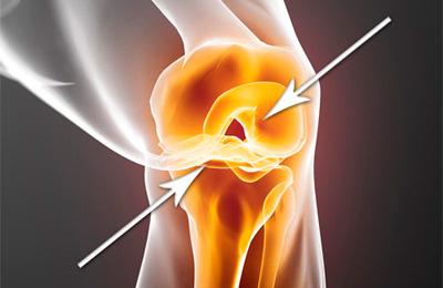 средство для восстановления хрящей суставов