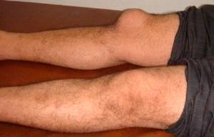 Bursit na pravom kolene