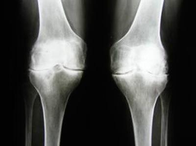 Rentgen sustava s artritom