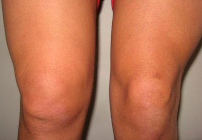 Как лечить синовит коленного сустава