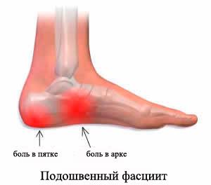 тянет суставы ног при использовании гонал ф