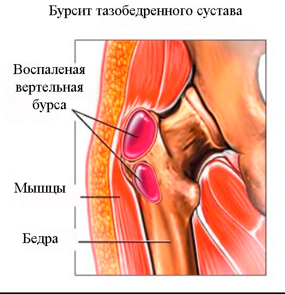 Bol'-v-tazobedrennom-sustave-bursit