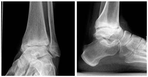 Izobrazheniye-artroza-golenostopnogo-sustava