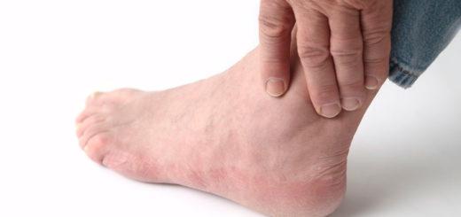 Izobrazheniye-golenostopnogo-sustava-(artroz)