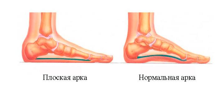 Izobrazheniye-normal'noy-nogi-i-ploskostipiya