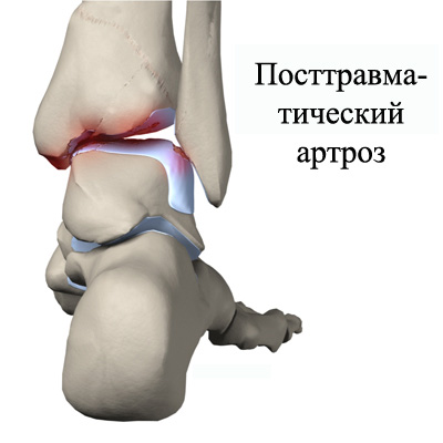 Izobrazheniye-postravmaticheskogo-artroza