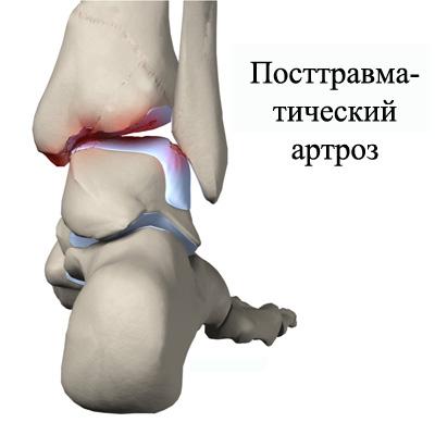 Изображение - Гонартроз голеностопного сустава Izobrazheniye-postravmaticheskogo-artroza