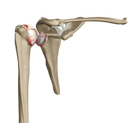 Izobrazheniye-revmatoidnogo-artrita-plecha