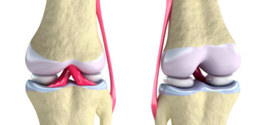 Meniska kolennogo sustava