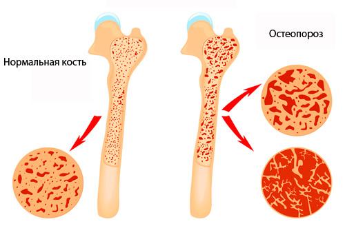 osteoporoz izmeneniya