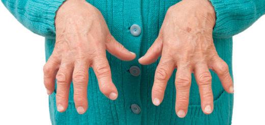 Revmatoidnyy-artrit