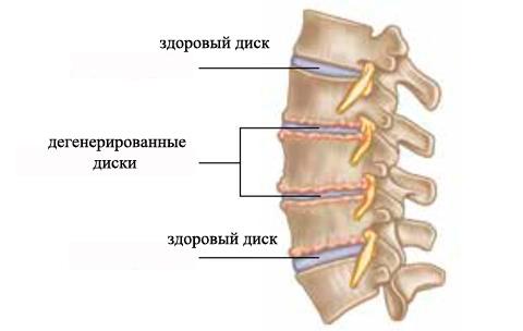 Sheynyy-spondilez-izobragenie-deformirovannogo-diska