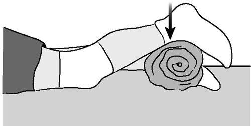Изображение - Упражнения после артроскопии коленного сустава Uprazhneniye-Sokrashcheniye-chetyrekhglavoy-myshtsy-e1492089112342