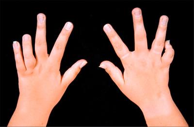 Yuvenil'nyy-revmatoidnyy-artrit-u-detey