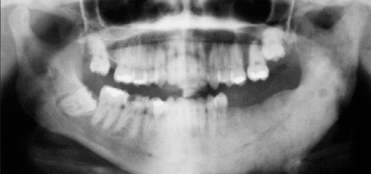 Osteomiyelit