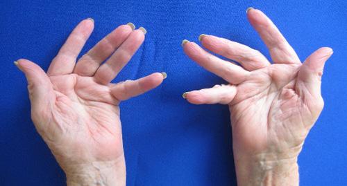 deformirovany-pal'tsy-ruk-iz-za-revmatoinogo-artrita