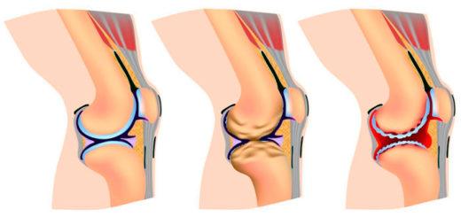 izobrazheniye stadii artroza