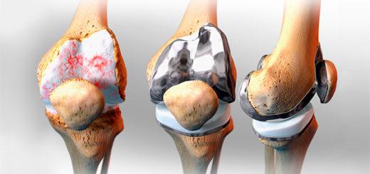 Endoprotezirovaniye kolennogo sustava