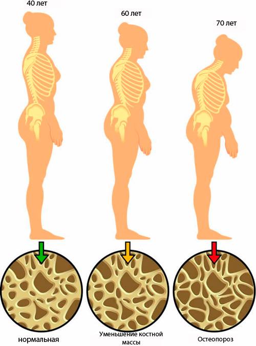 hronologia osteoporoza