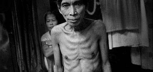 Simptomy tuberkuleza