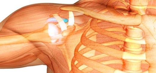 Izobrazheniye-artroza-plechevogo-sustava-stroeniye
