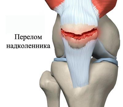 Izobrazheniye-pereloma-kolennogo-sustava