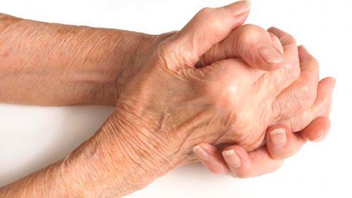 Народные средства артрита шейного отдела