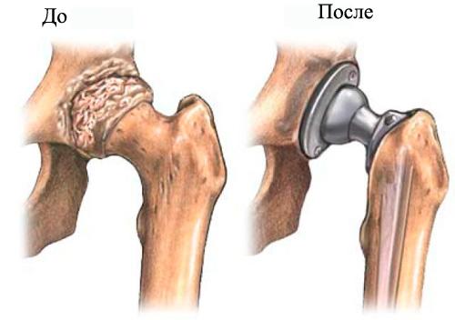 как долго восстанавливаются суставы после эндопротезирования