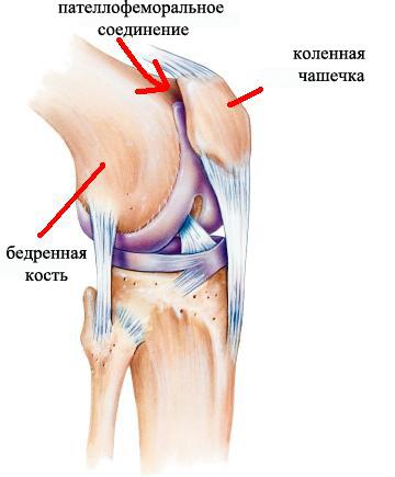 Изображение - Болят связки коленного сустава с внешней стороны Patellofemoralnyy-sindrom-s-vneshney-storony