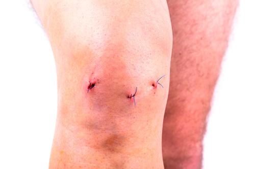 Shvy-posle-artroskopii