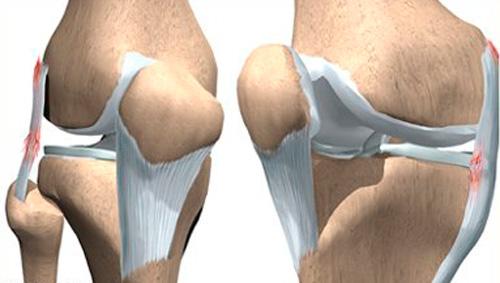 Изображение - Болят связки коленного сустава с внешней стороны Travma-bokovoy-svyazki-s-vneshney-storony