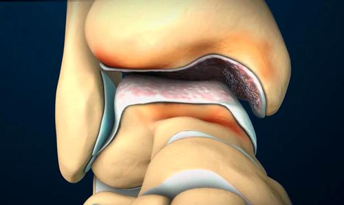 Artroz-golenostopnogo-sustava-lecheniye