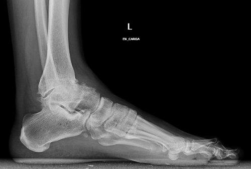 Artroz-golenostopnogo-sustava-rentgen