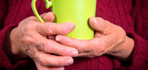 Izobrazheniye-artroza-ruk