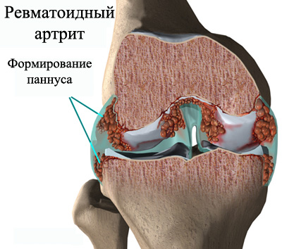 Revmatoidnyy-pannus