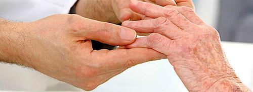 Zhizn'-s-artritom