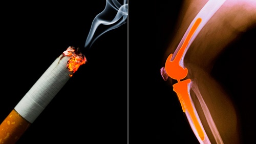 Изображение - Могут ли болеть суставы от курения %D0%9A%D1%83%D1%80%D0%B5%D0%BD%D0%B8%D0%B5-%D0%B2%D0%BB%D0%B8%D1%8F%D0%B5%D1%82-%D0%BD%D0%B0-%D1%81%D1%83%D1%81%D1%82%D0%B0%D0%B2%D1%8B