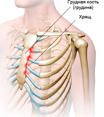 Хрустит в грудной клетке посередине
